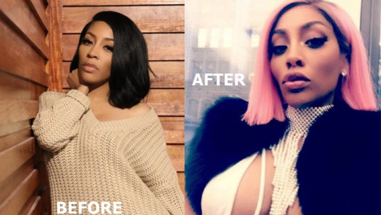 K Michelle's New Look After Face Plastic Surgery is Rumor!